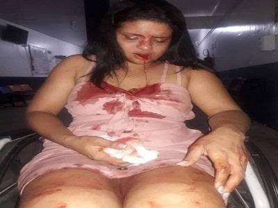 Marido espanca e arranca dente da esposa com violento soco na boca
